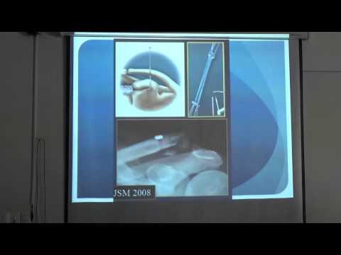 Tratamentul cu anghinare din Ierusalim pentru artroză