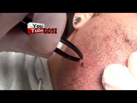 Ingrown Blackhead