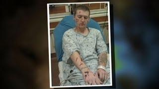 Colorado Man Fights Off Three Coyotes, Survives