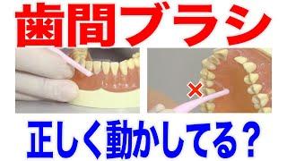 歯間ブラシの正しい動かし方