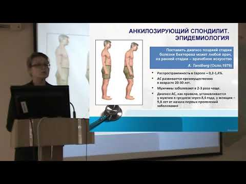 Башкова И.Б.: О болезни Бехтерева и лечении в республике Чувашия