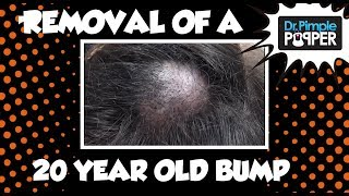 A 20-year old Embarrassing Bump on the Scalp: Dr Pimple Popper