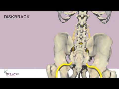 Dolore nella parte destra sotto le costole e schiena
