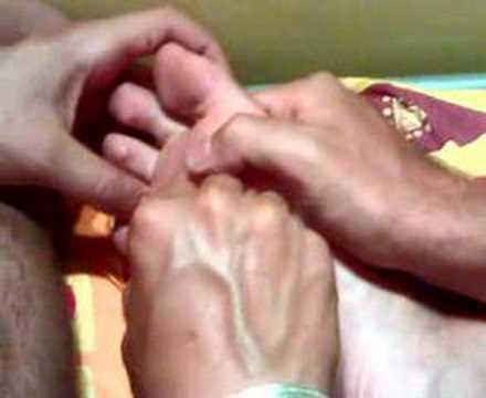 Il fungo un piede e come trattare