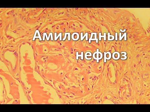 Схема лечения гепатита с генотип 2 софосбувиром