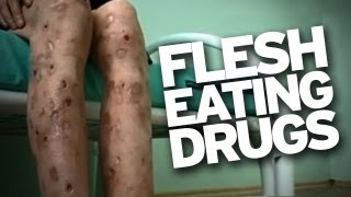 "Flesh Eating Drug ""Krokodil"" Hits U.S.!"