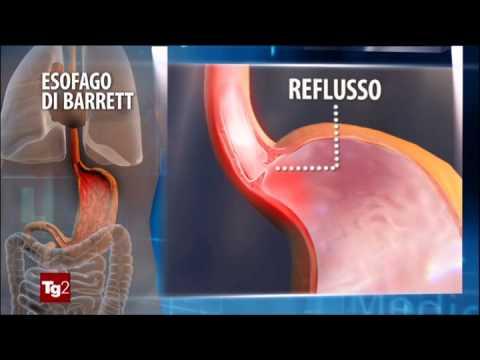 Trombosi in sintomi di gamba
