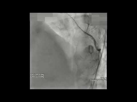 Total Arterial Revascularisation