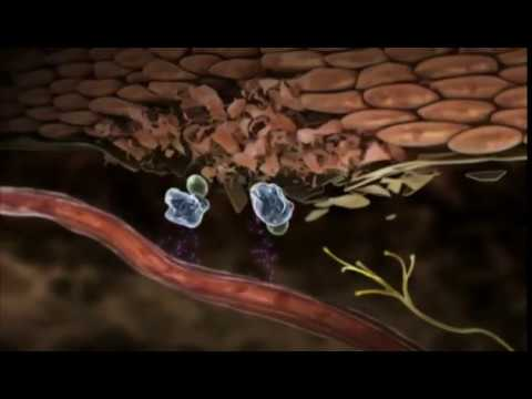 Diffusa osteocondrosi della lombari