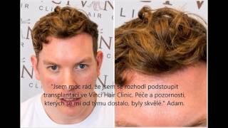 Vytvoření přírodní vlasové linie pomocí transplantačních technik FUT a FUE -  Vinci Hair Clinic