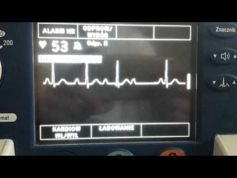 Lijekovi za liječenje visokog krvnog tlaka