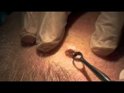 Virus papiloma humano genital