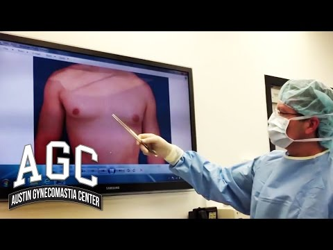 Educational Video: One-Sided (Unilateral) Gynecomastia