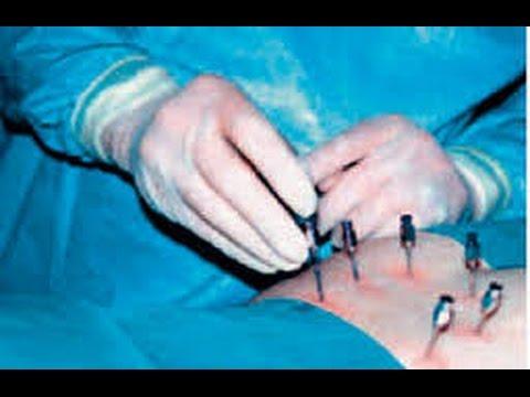 Wenn der Schmerz in den verschiedenen Teilen des Halses