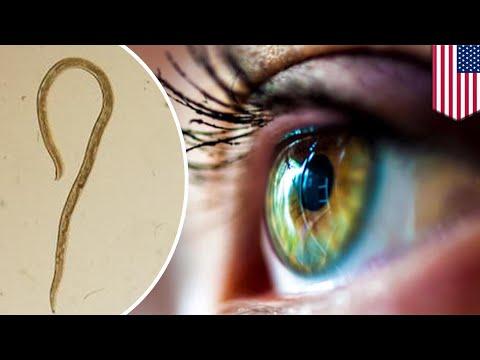 Flat roundworm parasites