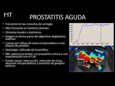 Mi a prostatitis és a kezelés módszerei
