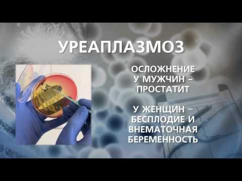 Фиброзный хронический простатит