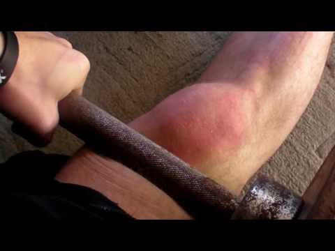 Video Knee , patella tendonitis, quadricep and anterior tibialis clean up