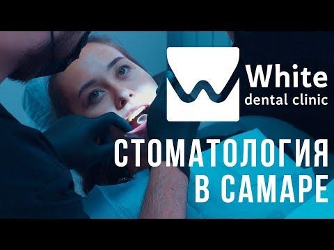 Стоматологическая клиника в Самаре - White Dental Clinic. Имплантация зубов. Виниры. Лечение зубов