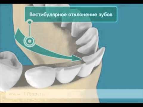 Аномалии зубного ряда. Аномалии зубов