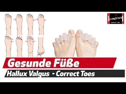 Hallux Valgus - Plattfüße usw. - Gesunde  Füße  dank Correct Toes?!