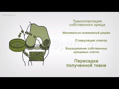 Диагностика и лечение артроза.  Регенеративная хирургия
