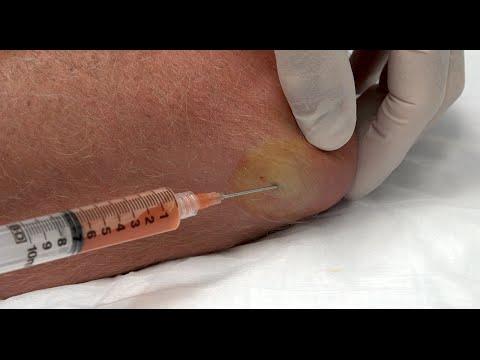 Bandscheibenbruch Behandlung Klinik