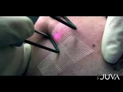 Jelqing Recensioni dellutente aumento