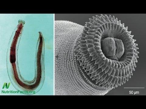 Sinubok para sa mga worm Lyubertsy