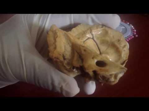Anatomía - Práctica de Hueso Temporal (Escama, Peñasco, Hueso Timpánico)
