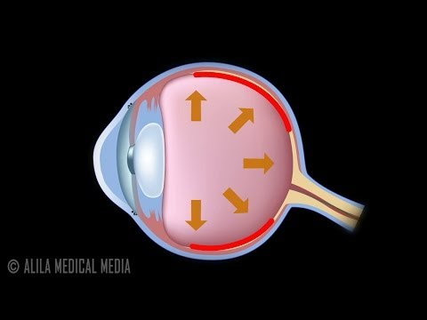 Development of Glaucoma Animation, Open Angle vs Angle Closure Glaucoma