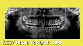 The U.S. Is Checking Immigrant Kids Teeth To See If They Belong In Adult Detention (HBO)