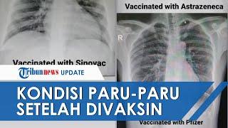 Foto Rontgen Paru-paru Unggahan Dokter ini Viral, Ungkap Beda Pasien Covid-19 Divaksin dan Tidak
