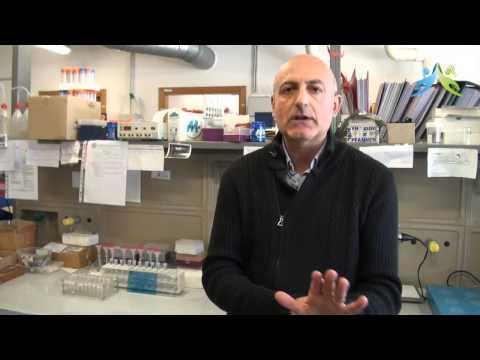 Artrosi deformante trattamento piccole articolazioni