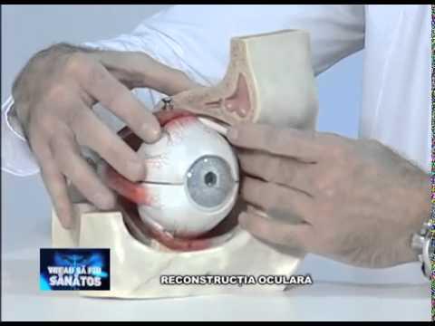 Cum se tratează vederea cu afine