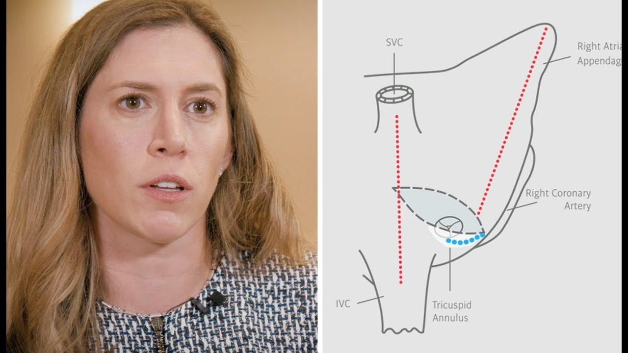 Dr. Katharine Harrington: Lesion Set Selection for Stroke Risk During Concomitant AFib Surgery