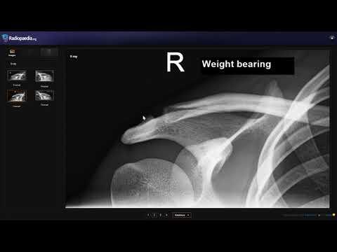 Kenőcsök az ágyéki csontritkulás kezelése