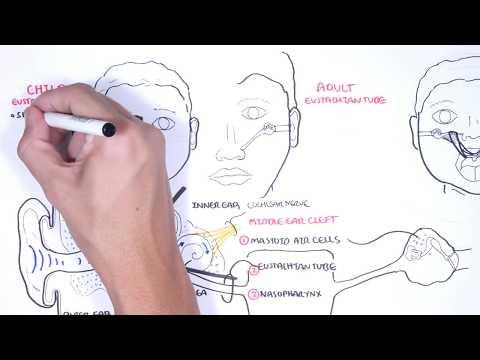 Ostre zapalenie ucha środkowego u dzieci