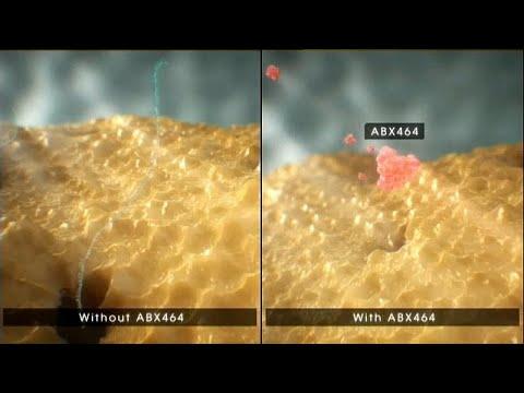 Metastasi del cancro alla prostata