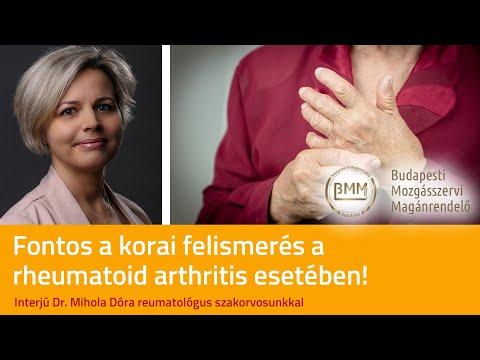 Artrózis kezelése norbekov szerint