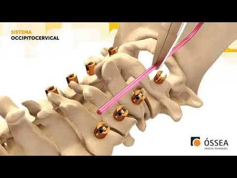 Simptomele artritei cotului