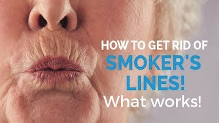 How to remove smoker's lines- update