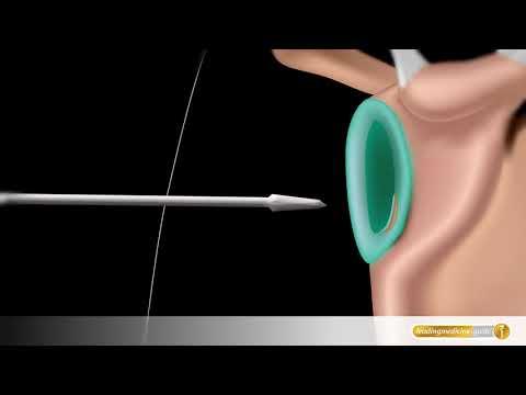 Bad mit Osteochondrose der Halswirbelsäule