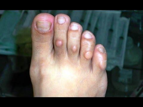 Flukonazol del hongo de las uñas el precio de 150 mg el precio las revocaciones