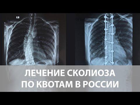 Возможно ли лечение сколиоза по квоте в России?
