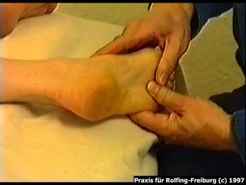 Sehstörungen mit zervikaler Osteochondrose
