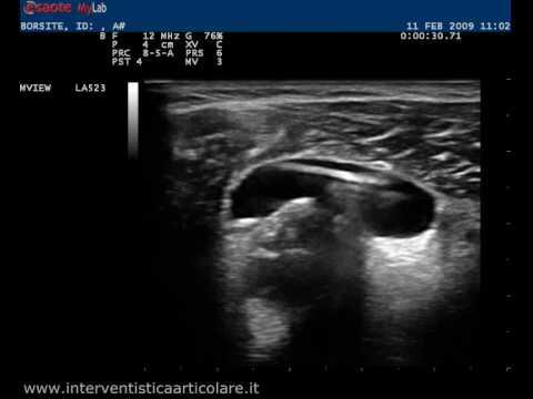 Impingement della sindrome x-ray spalla destra