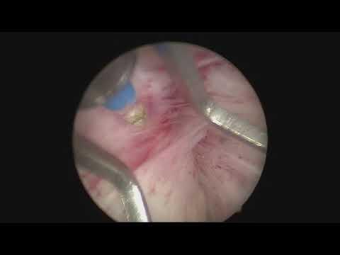 Schmerzhafte Prostata Geheimnis