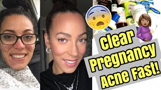 HOW TO CLEAR PREGNANCY ACNE FAST! | 1 Product 3 Days