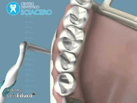 Vertebre inceppata nella colonna vertebrale cervicale